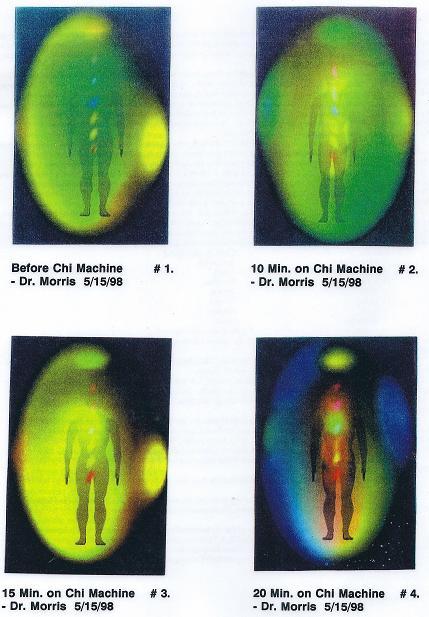 quantum feedback machine